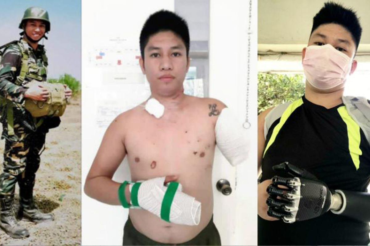 Soldier Amputees: Losing Limbs to Save Lives